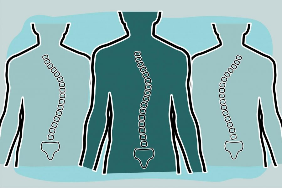 In an image created by graphic designer Mark Chrissan, three curved spines display the different shapes of scoliosis. The condition refers to when the spine curves in the form of a 'S' or 'C' shape.